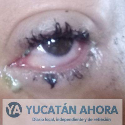 En Yucatán, un caso de conjuntivitis cada nueve minutos