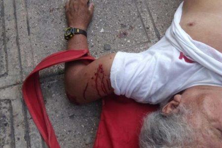 Céntrico semaforazo deja a motociclista con tobillo y brazo fracturados