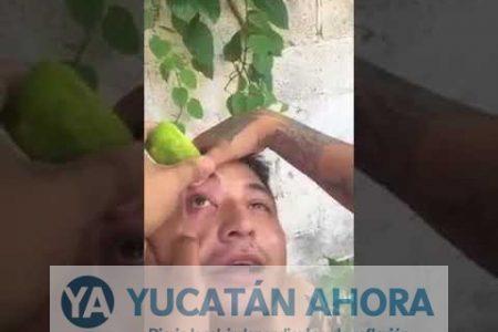 Gotas de limón en los ojos, remedio yucateco contra la conjuntivitis