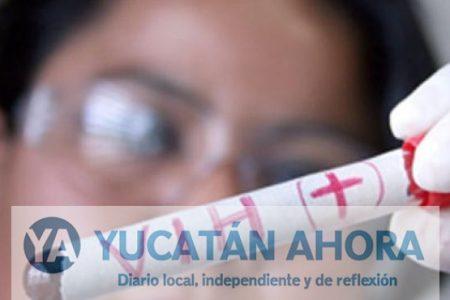 En 30 años se reportaron 7 mil 237 casos de VIH y SIDA en Yucatán