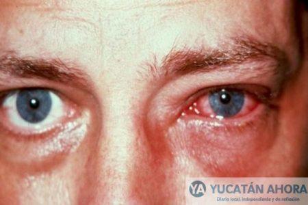 Se duplica la conjuntivitis hemorrágica en Yucatán