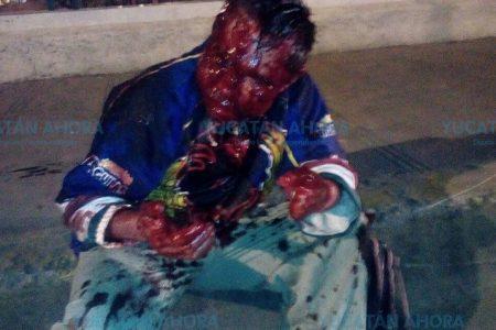 Sangrienta parranda en la García Ginerés