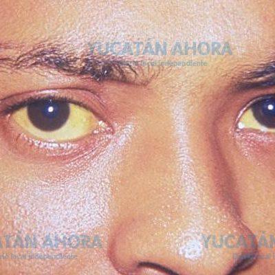 Prevalece en Yucatán brote de hepatitis