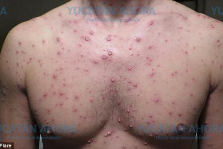 Repunte de casos de varicela en Yucatán