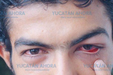 Conjuntivitis a la baja en la Península de Yucatán: un caso cada 14 minutos