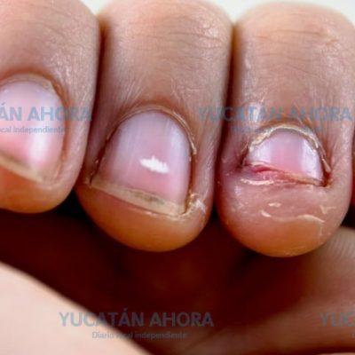 Comerse las uñas, problema común pero sin estadística