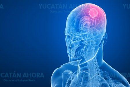 Cáncer de cabeza y cuello incrementa en Yucatán