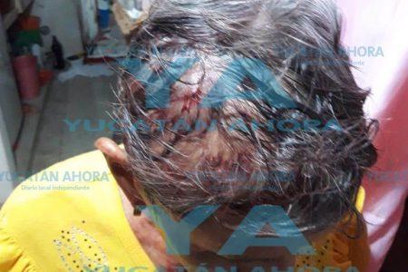 Sujeto golpea hasta mandar al hospital a una mujer de casi 70 años