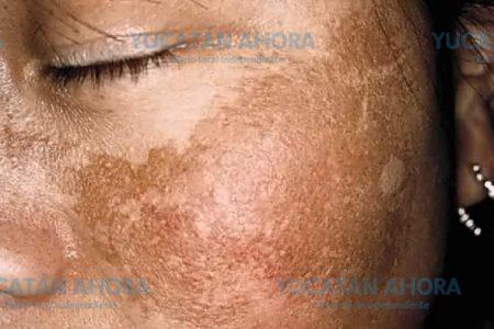 Exponerte mucho al sol puede mancharte la piel
