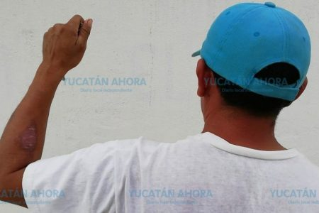 Llega a Yucatán embarque de cemento tóxico de origen africano