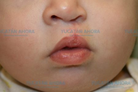 Prevalecen tabúes sobre labio leporino en la Península