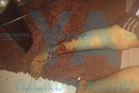 Dos lesionados por ataques de tres pitbull en Ciudad Caucel