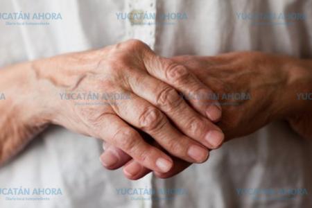 Artritis reumatoide, una enfermedad que no mata pero que no deja vivir