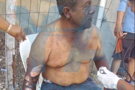 'Guerra' de voladores en gremio de señoras: dos heridos