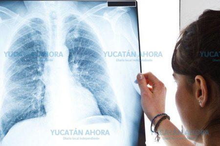 Aumentan en 100 por ciento los casos de tuberculosis en Yucatán