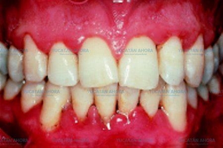 Por no lavarse bien los dientes, aumenta la gingivitis en Yucatán
