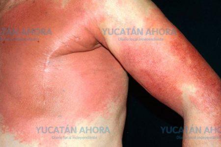 Aumentan en Yucatán enfermedad de la piel asociada a la diabetes