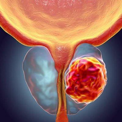 Península de Yucatán, región con menos mortalidad de cáncer de mama y próstata