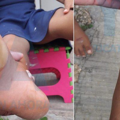 Detienen al papá que le quemó los pies a su hija de ocho años