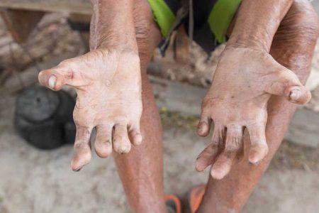 Reaparece estigmatizada enfermedad bíblica en Yucatán