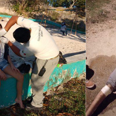 Menores accidentados en el Acuaparque y el Parque Hundido