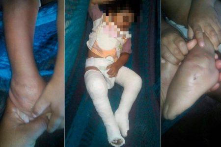 Angustiada madre solicita vendas especiales para su hijo con 'pie zambo'