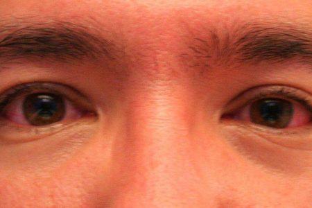 Efecto colateral de cuidarse por el Covid-19: bajan los casos de conjuntivitis