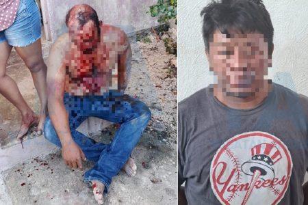 Convivio familiar con pleito en Kanasín: le clava un cuchillo en la cara a su cuñado