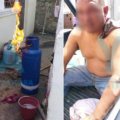 Dos quemados por flamazo mientras gaseros abastecían una vivienda