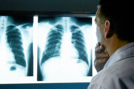 Infectados por Covid-19 severo, propensos a sufrir cáncer de pulmón
