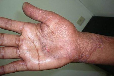 La lepra presente en toda la Península, detectan primer caso en Campeche