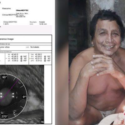 Piden apoyo para don Valentín, requiere cirugía en ambos ojos