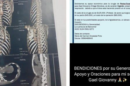 Geovanny requiere apoyo urgente para una cirugía torácica