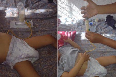 Rubén, el niño meridano con esófago incompleto y abandonado por su seguridad social