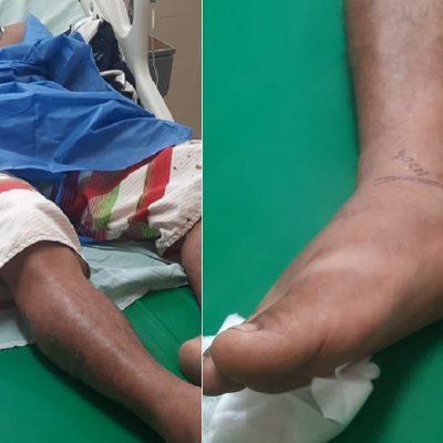 Víbora cuatro narices ataca a un hombre en Colonia Yucatán